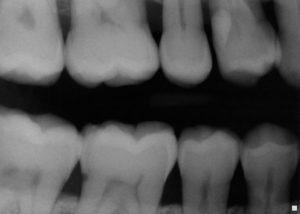تصویر نمونه ای از رادیوگرافی به روش AC