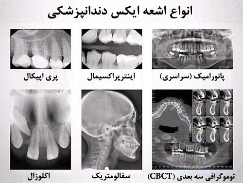 انواع رادیوگرافی خارج دهانی