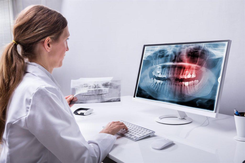 کدام رادیوگرافی بهتر است؟